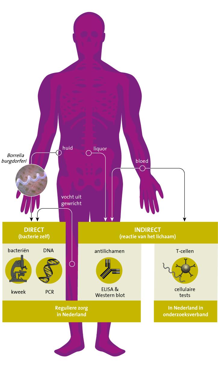 bacterie ziekte van lyme preparate de paraziți de generație următoare
